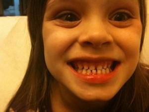 Last Milk-Teeth-Intact photo